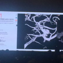 New devices can cure aneurysm in India, says international doctors at ANVI 2018