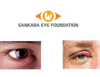 Swollen eyelid - Sankara Eye Hospital