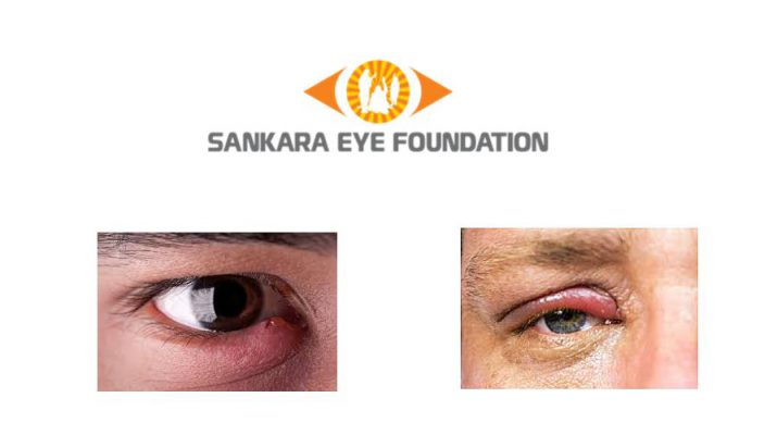 Swollen eyelid - Sankara Eye Hospital